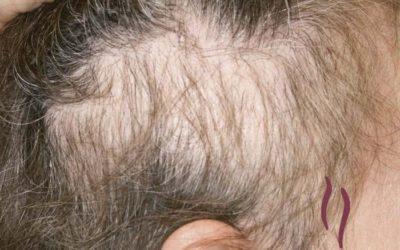 Tricotilomanía ¿Por qué los niños se arrancan los pelos?
